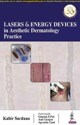 Lasers and Energy Devices in Aesthetic Dermatology Practice